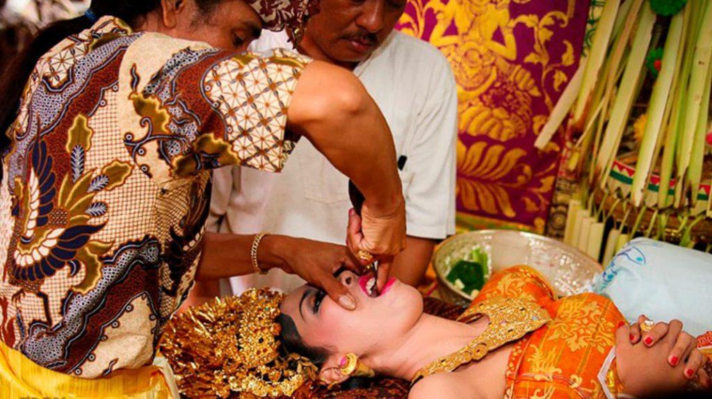 Спиливание зубов в Индонезии