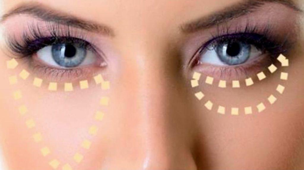 Как быть красивой, как правильно маскировать синяки под глазами
