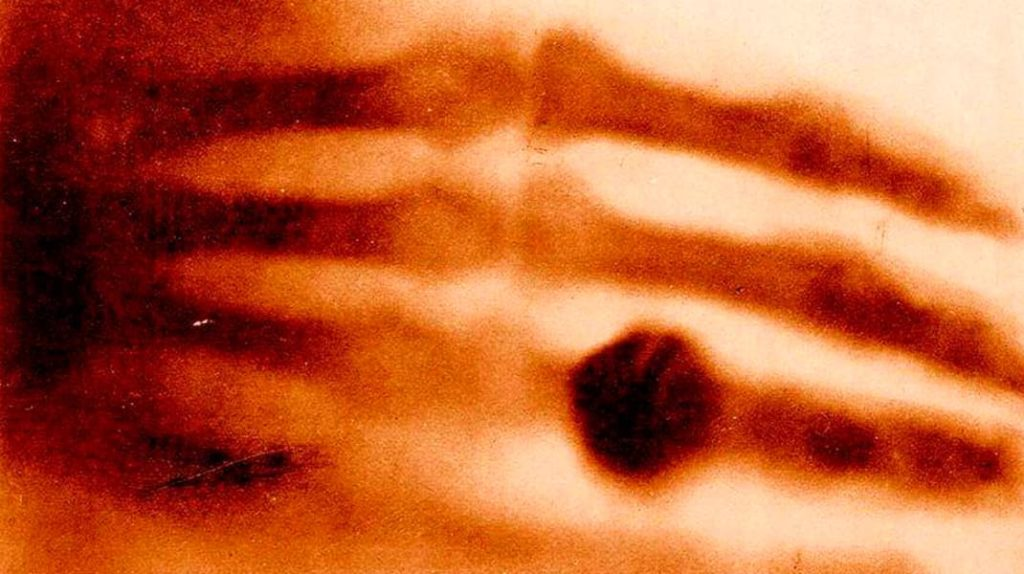 Первый в мире рентгеновский снимок, Вильгельм Рентген